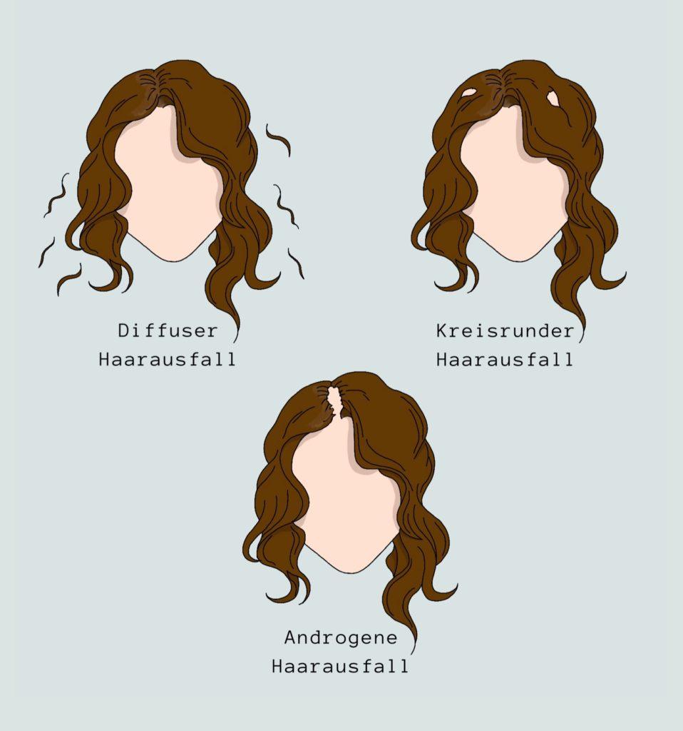 Pille abgesetzt und jetzt Haarausfall: Haarausfallarten